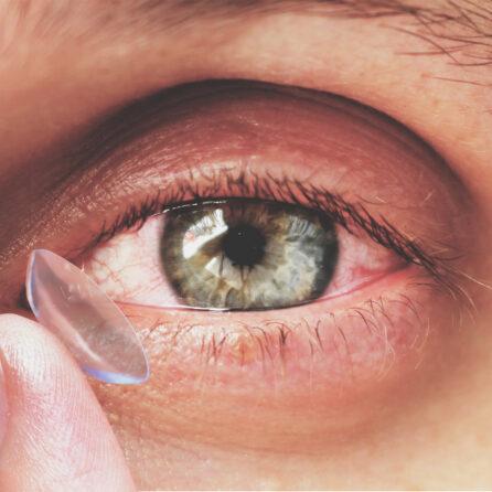 Alergiczne choroby oczu – objawy, leczenie