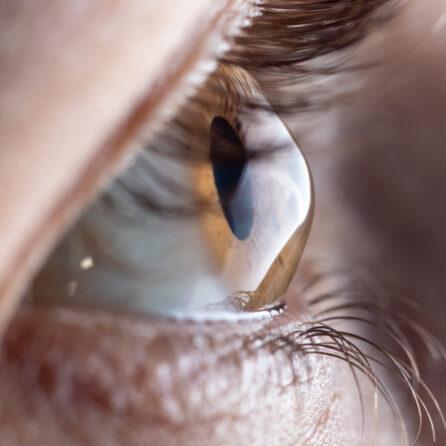 Choroby rogówki: zapalenie rogówki, zwyrodnienie – przyczyny – objawy – leczenie – Kliniki Okulistyczne Optegra