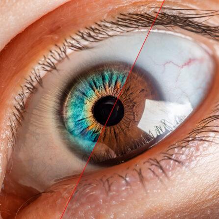 Genetyczne choroby oczu – dziedziczne problemy ze wzrokiem – Kliniki Okulistyczne Optegra