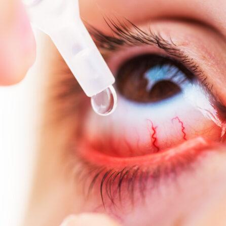 Czy zapalenie spojówek jest zaraźliwe? Bakteryjne, Wirusowe, Alergiczne – Kliniki Okulistyczne Optegra